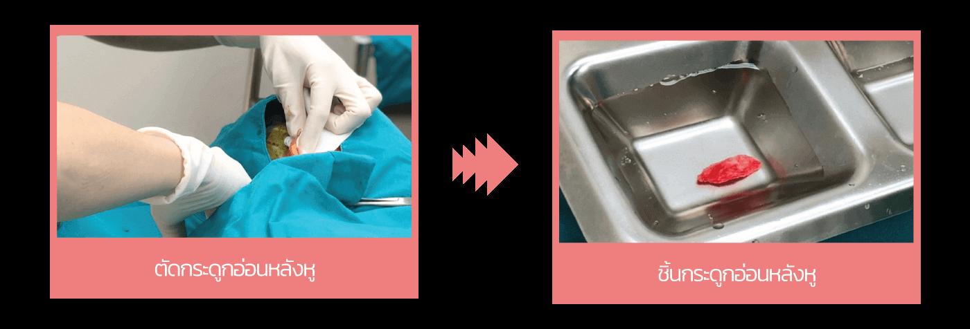ตัดกระดูกอ่อนหลังหู เทคนิคการเสริมจมูก แก้จมูก โดยหมอมนาปี